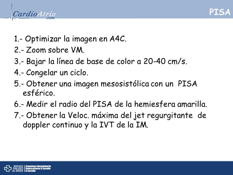 PISA 1.- Optimizar la imagen en A4C. 2.- Zoom sobre VM. 3.- Bajar la línea de base de color a 20-40 cm/s. 4.- Congelar un ciclo. 5.- Obtener una image