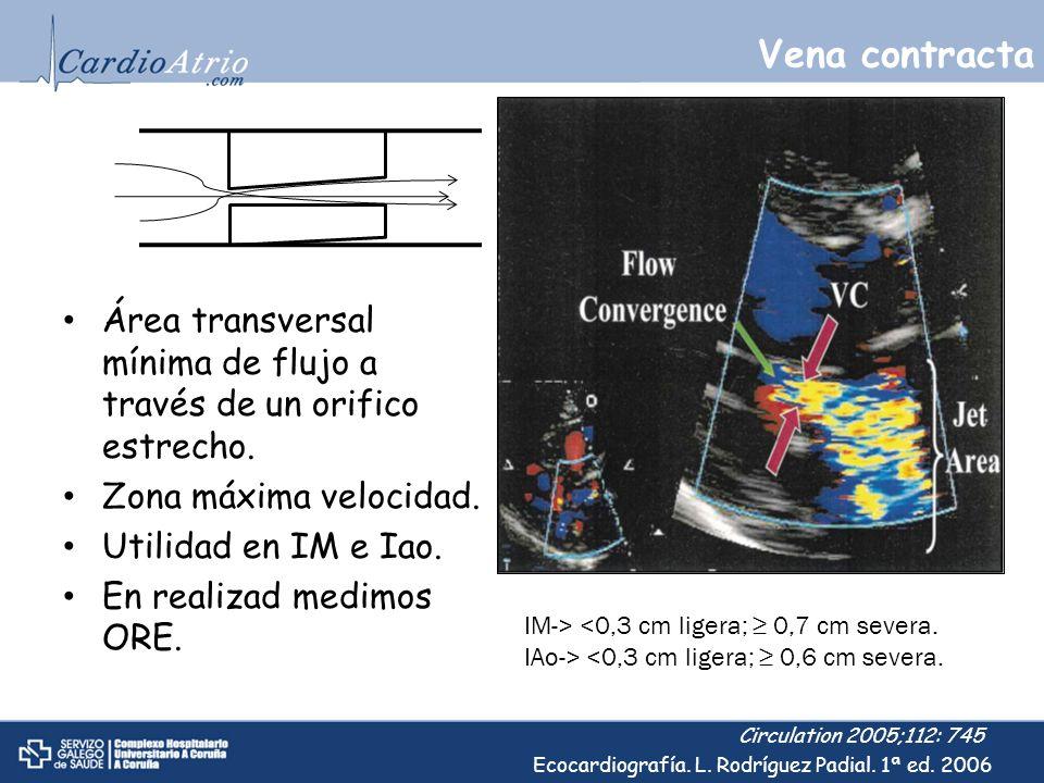 Vena contracta Área transversal mínima de flujo a través de un orifico estrecho. Zona máxima velocidad. Utilidad en IM e Iao. En realizad medimos ORE.