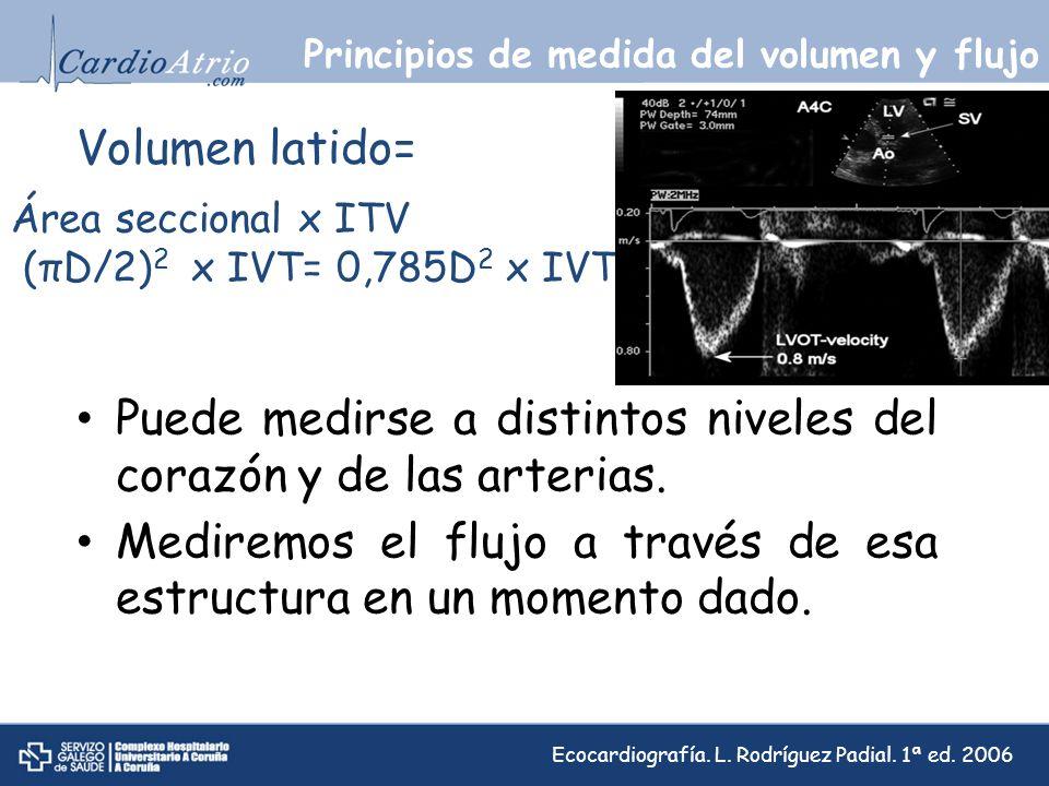 Principios de medida del volumen y flujo Área seccional x ITV (πD/2) 2 x IVT= 0,785D 2 x IVT Volumen latido= Puede medirse a distintos niveles del cor
