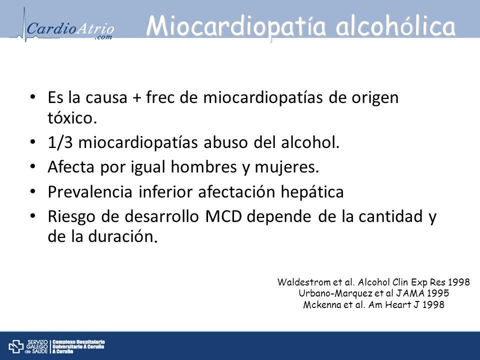 Miocardiopat í a alcoh ó lica Es la causa + frec de miocardiopatías de origen tóxico. 1/3 miocardiopatías abuso del alcohol. Afecta por igual hombres