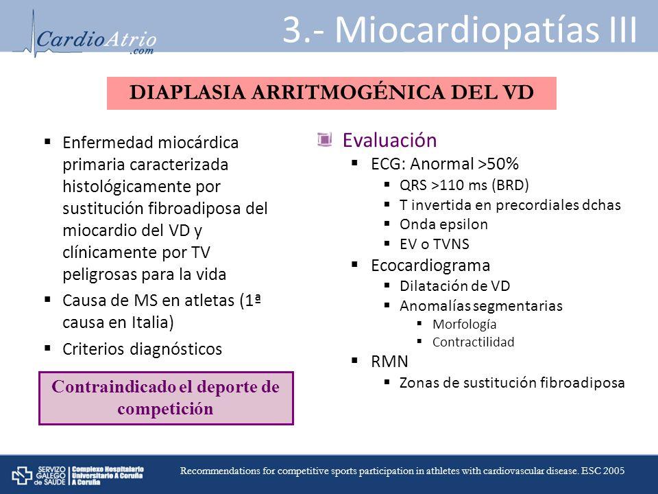 Enfermedad miocárdica primaria caracterizada histológicamente por sustitución fibroadiposa del miocardio del VD y clínicamente por TV peligrosas para