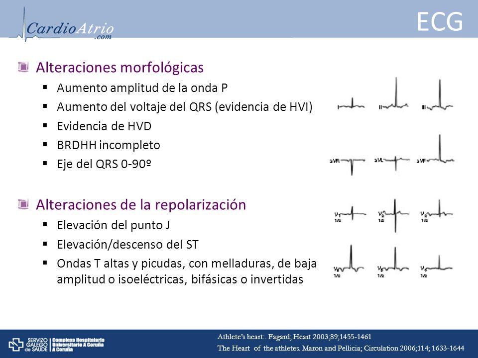 ECG Alteraciones morfológicas Aumento amplitud de la onda P Aumento del voltaje del QRS (evidencia de HVI) Evidencia de HVD BRDHH incompleto Eje del Q
