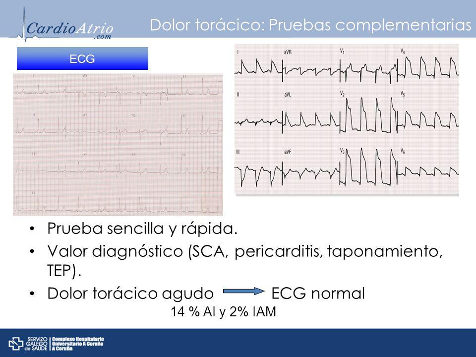 Dolor torácico: Pruebas complementarias Prueba sencilla y rápida. Valor diagnóstico (SCA, pericarditis, taponamiento, TEP). Dolor torácico agudo ECG n