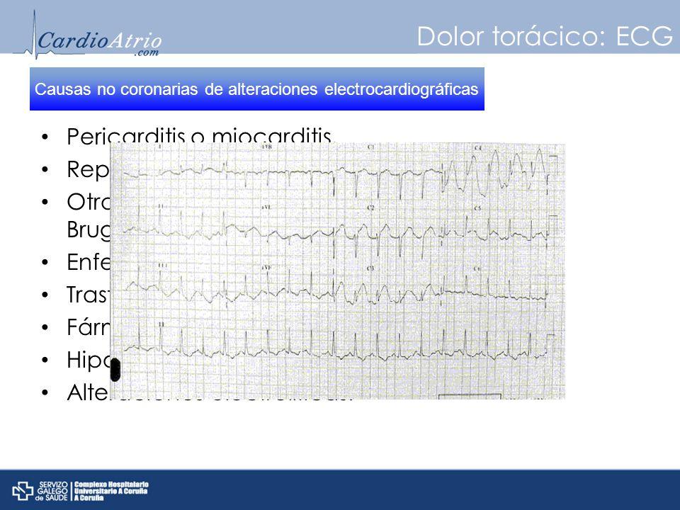 Dolor torácico: ECG Pericarditis o miocarditis. Repolarización precoz. Otras enfermedades cardiacas: MCH, WPW, Brugada… Enfermedades abdominales. Tras