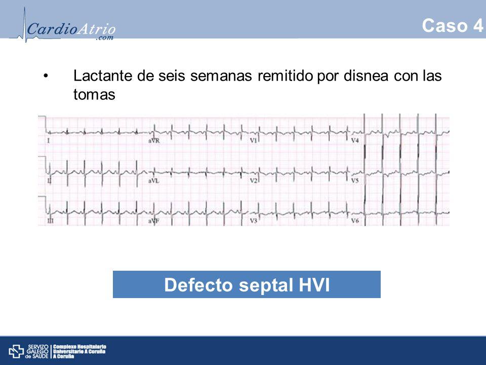 Caso 4 Lactante de seis semanas remitido por disnea con las tomas Defecto septal HVI