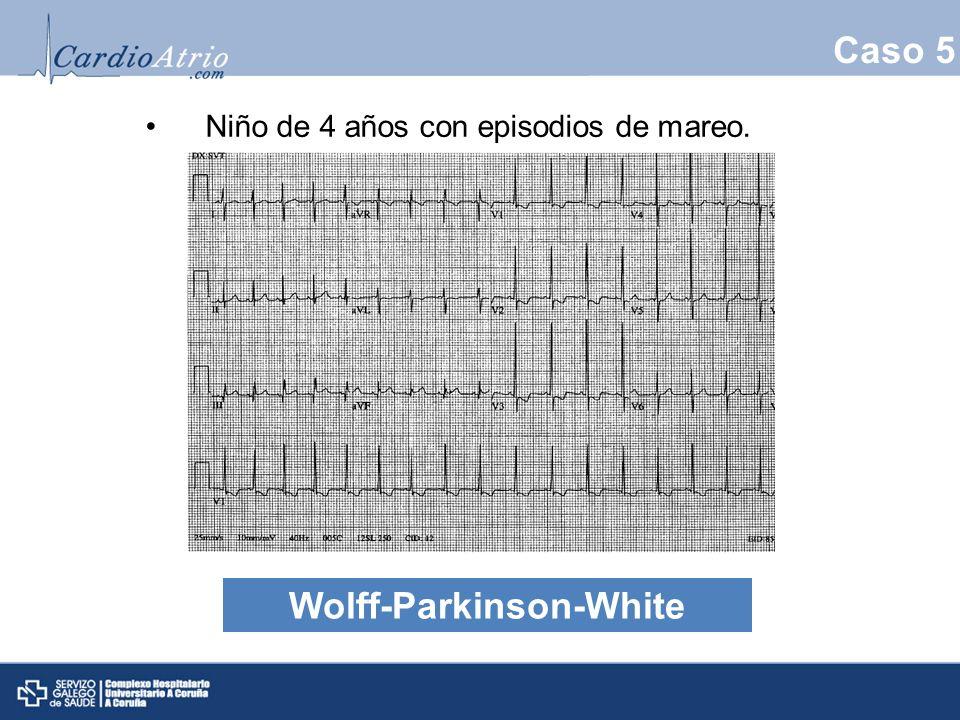 Caso 5 Niño de 4 años con episodios de mareo. Wolff-Parkinson-White