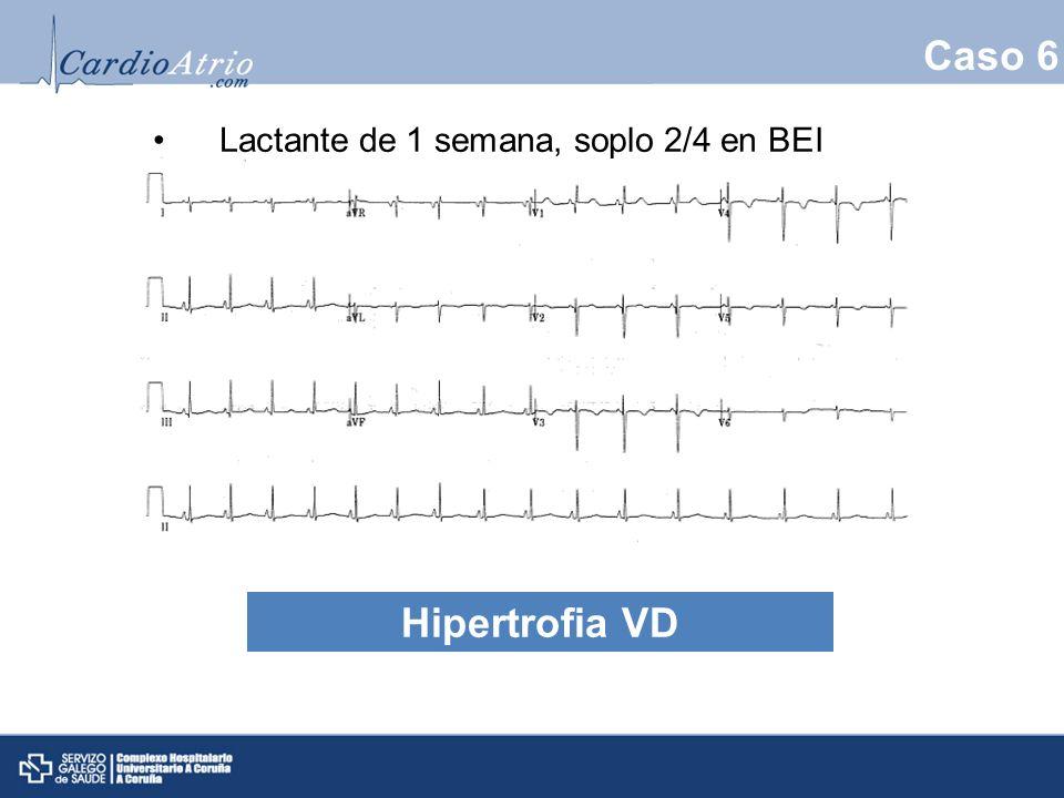 Caso 6 Lactante de 1 semana, soplo 2/4 en BEI Hipertrofia VD