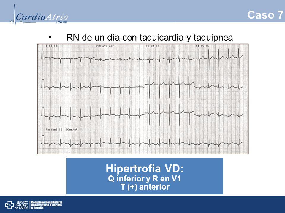Caso 7 RN de un día con taquicardia y taquipnea Hipertrofia VD: Q inferior y R en V1 T (+) anterior