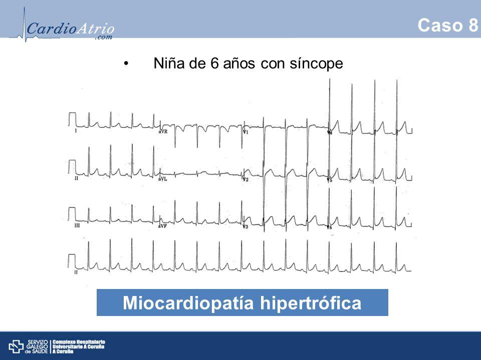 Caso 8 Niña de 6 años con síncope Miocardiopatía hipertrófica