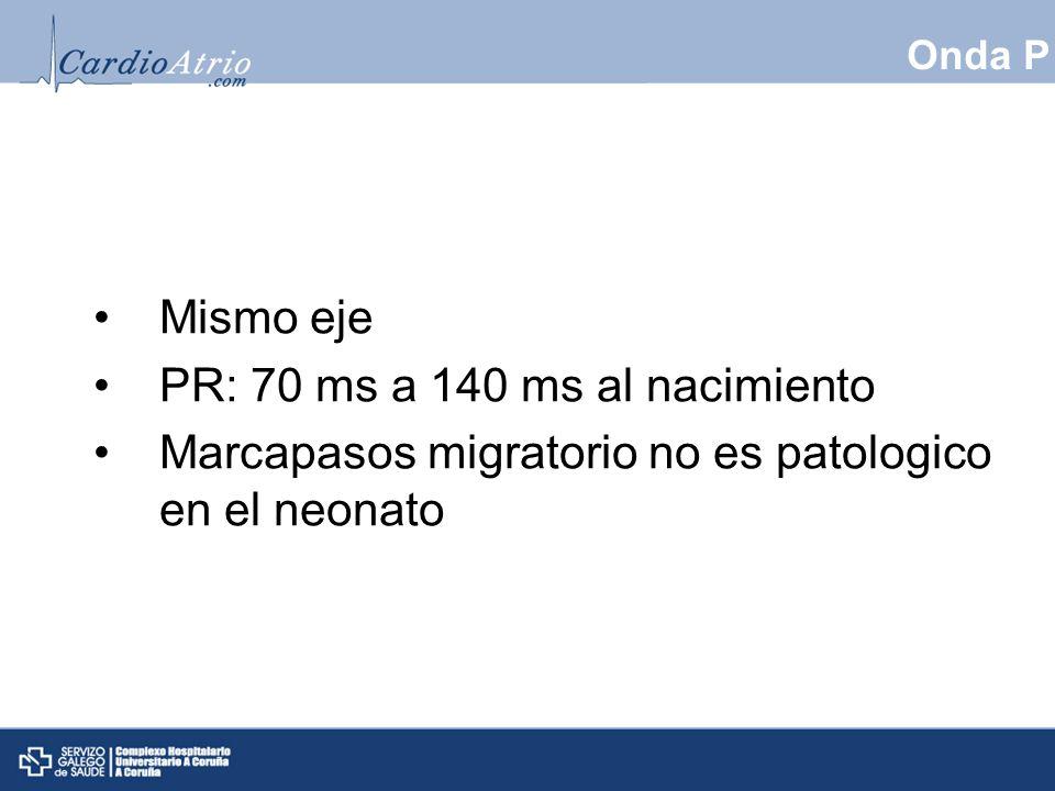 Onda P Mismo eje PR: 70 ms a 140 ms al nacimiento Marcapasos migratorio no es patologico en el neonato