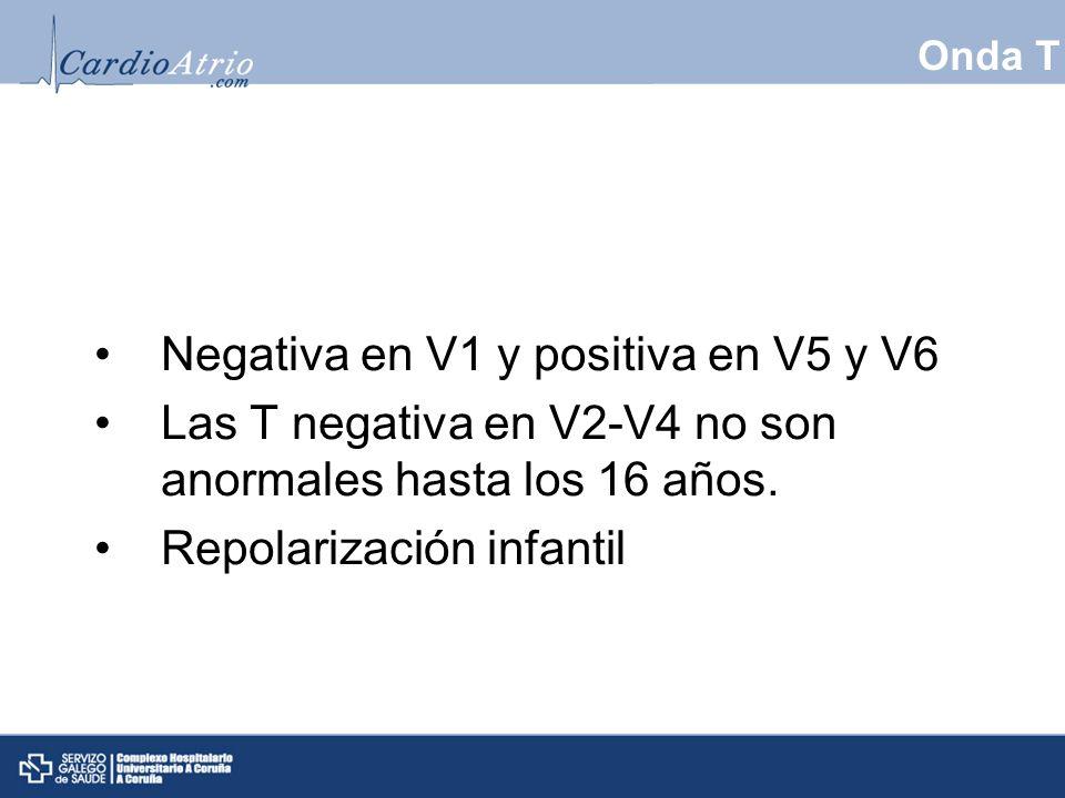 Onda T Negativa en V1 y positiva en V5 y V6 Las T negativa en V2-V4 no son anormales hasta los 16 años. Repolarización infantil