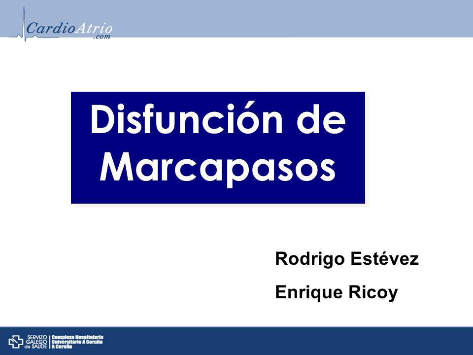Sesión de ECG Disfunción de Marcapasos Rodrigo Estévez Enrique Ricoy