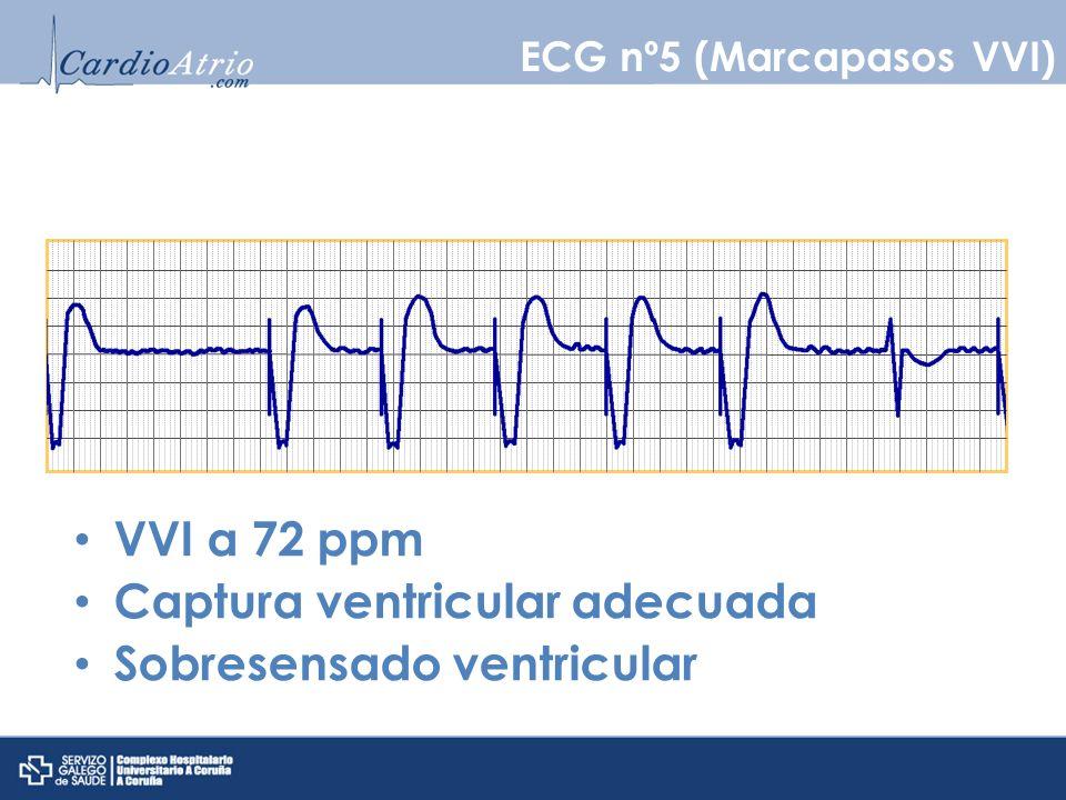 VVI a 72 ppm Captura ventricular adecuada Sobresensado ventricular ECG nº5 (Marcapasos VVI)
