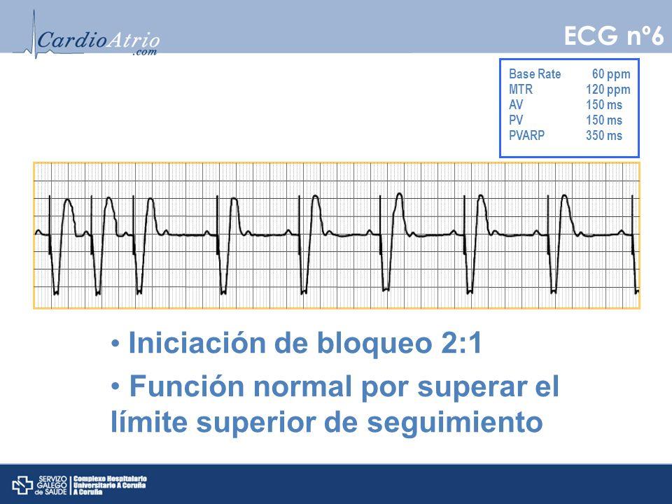 Base Rate 60 ppm MTR120 ppm AV150 ms PV150 ms PVARP350 ms Iniciación de bloqueo 2:1 Función normal por superar el límite superior de seguimiento ECG n