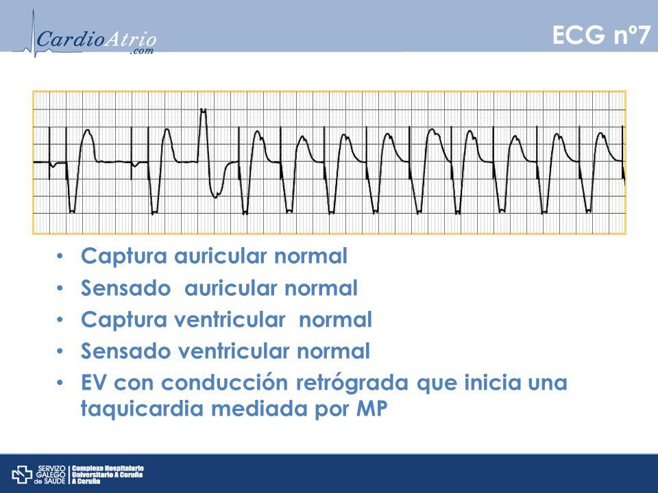 Captura auricular normal Sensado auricular normal Captura ventricular normal Sensado ventricular normal EV con conducción retrógrada que inicia una ta