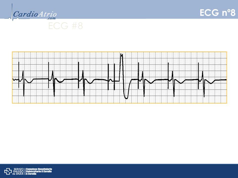 ECG #8 ECG nº8