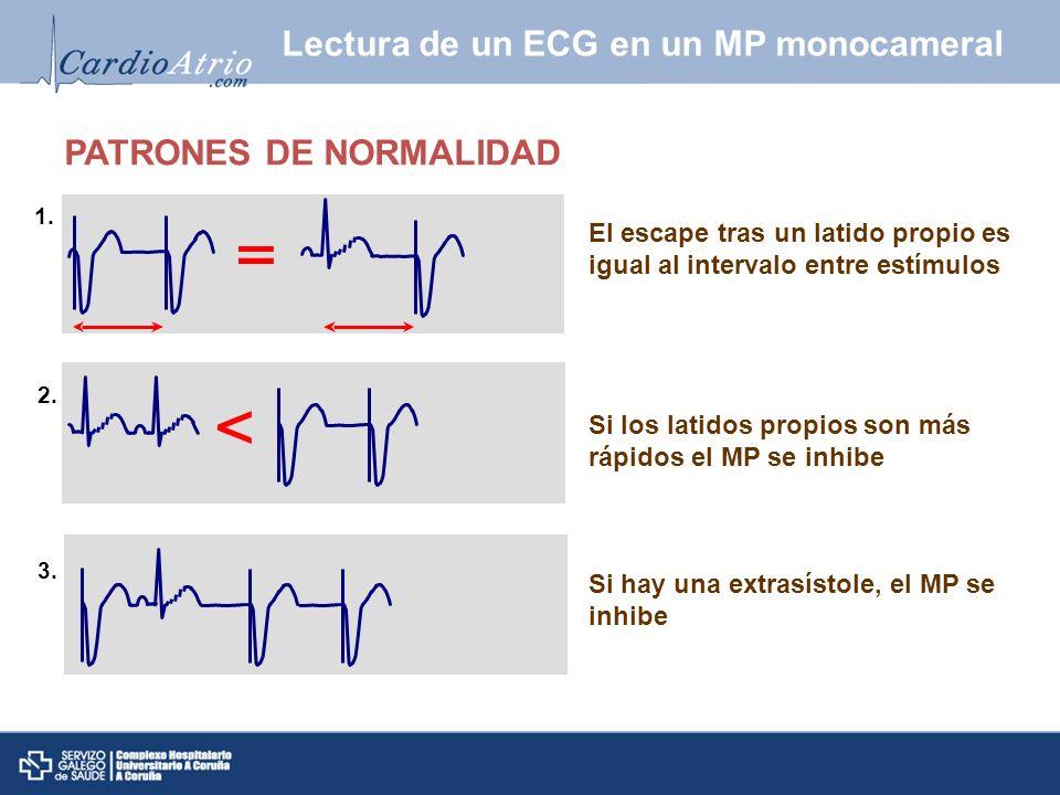 Lectura de un ECG en un MP monocameral El escape tras un latido propio es igual al intervalo entre estímulos PATRONES DE NORMALIDAD Si los latidos pro