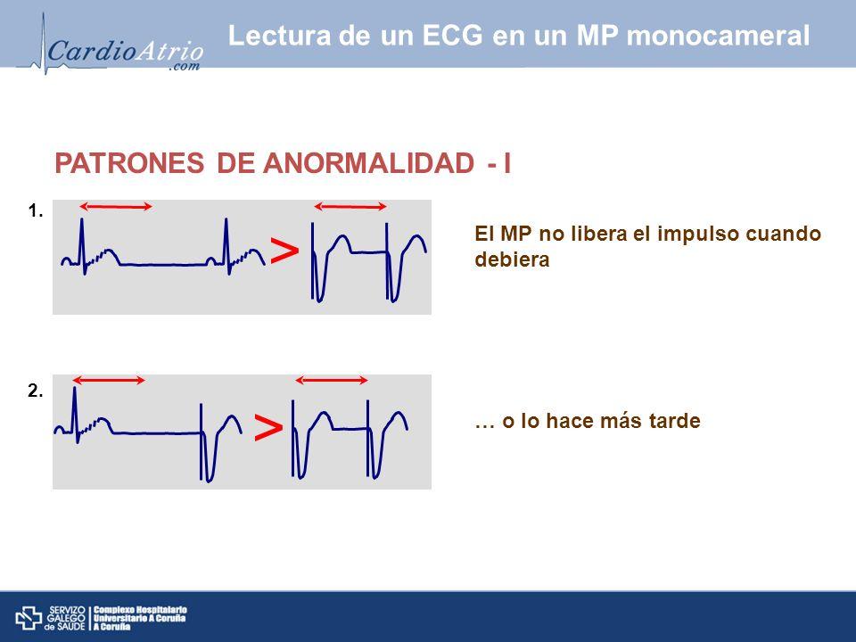El MP no libera el impulso cuando debiera PATRONES DE ANORMALIDAD - I … o lo hace más tarde 1. 2. Lectura de un ECG en un MP monocameral