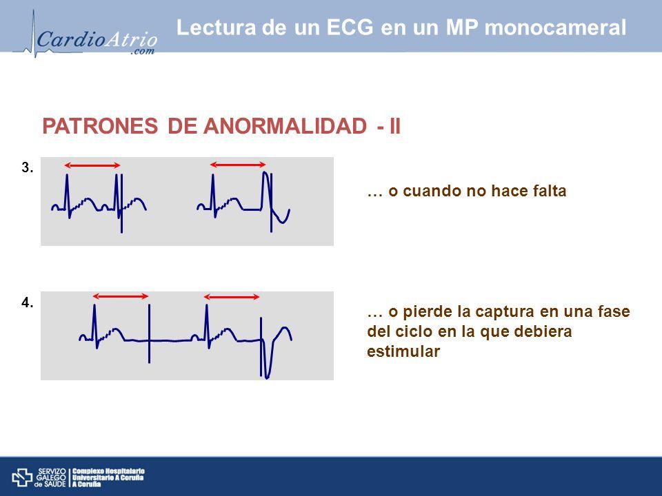 … o cuando no hace falta … o pierde la captura en una fase del ciclo en la que debiera estimular 3. 4. Lectura de un ECG en un MP monocameral PATRONES