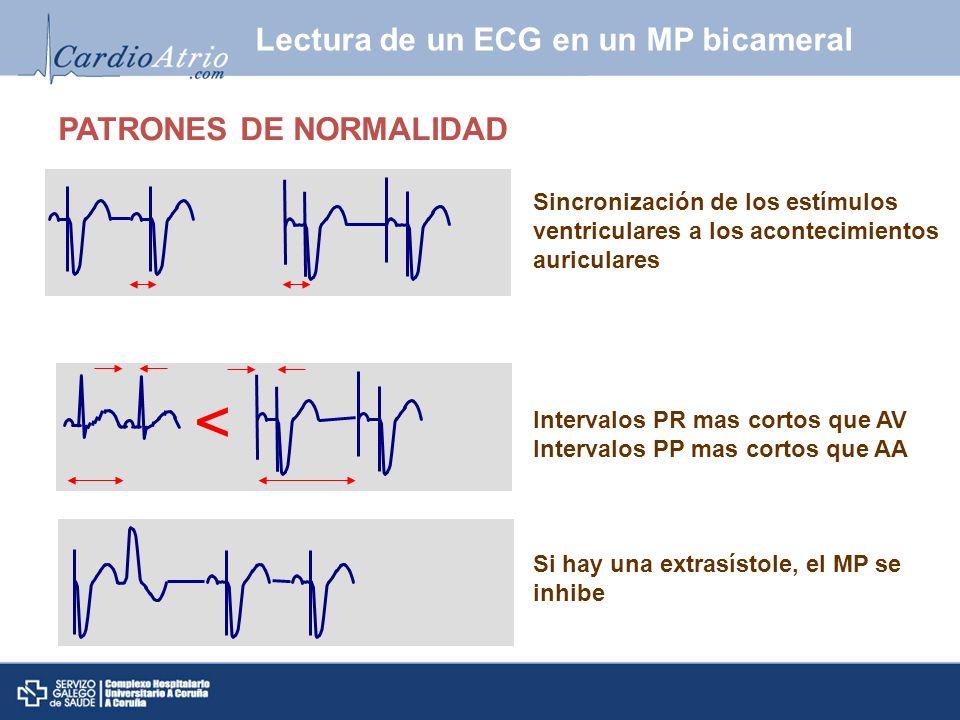 Sincronización de los estímulos ventriculares a los acontecimientos auriculares PATRONES DE NORMALIDAD Intervalos PR mas cortos que AV Intervalos PP m