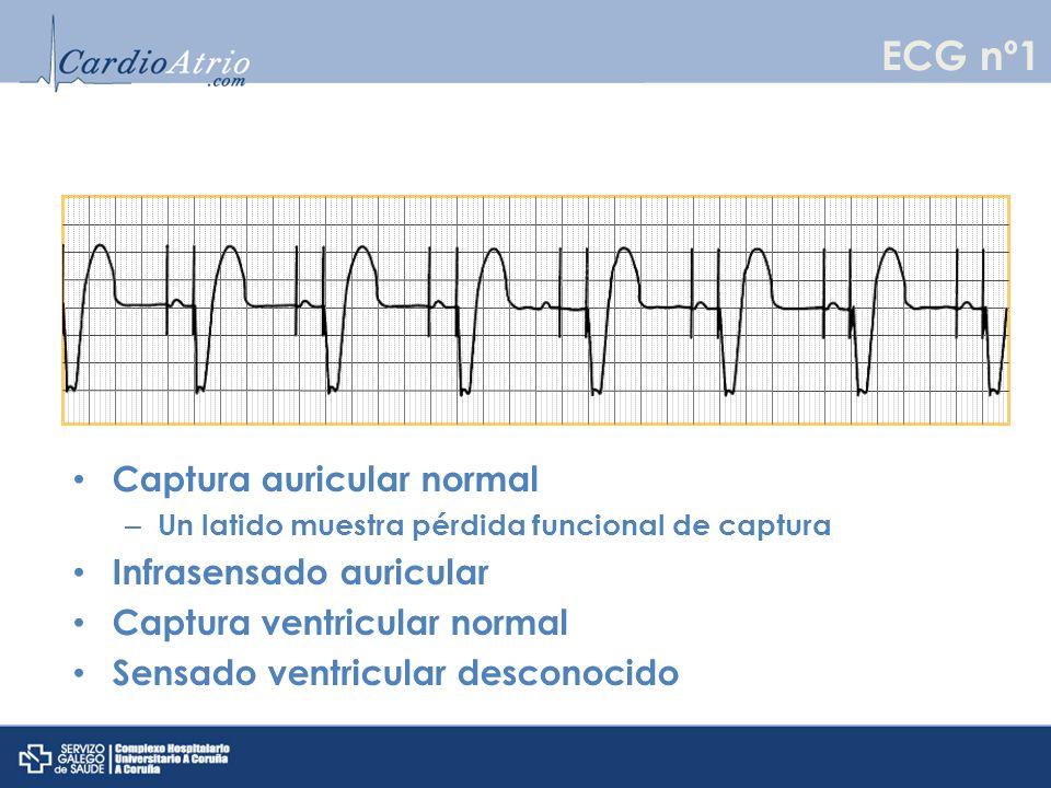 Captura auricular normal – Un latido muestra pérdida funcional de captura Infrasensado auricular Captura ventricular normal Sensado ventricular descon