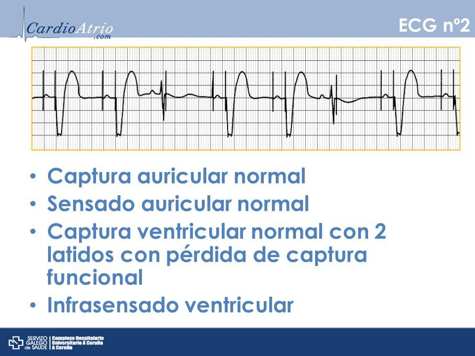 Captura auricular normal Sensado auricular normal Captura ventricular normal con 2 latidos con pérdida de captura funcional Infrasensado ventricular E
