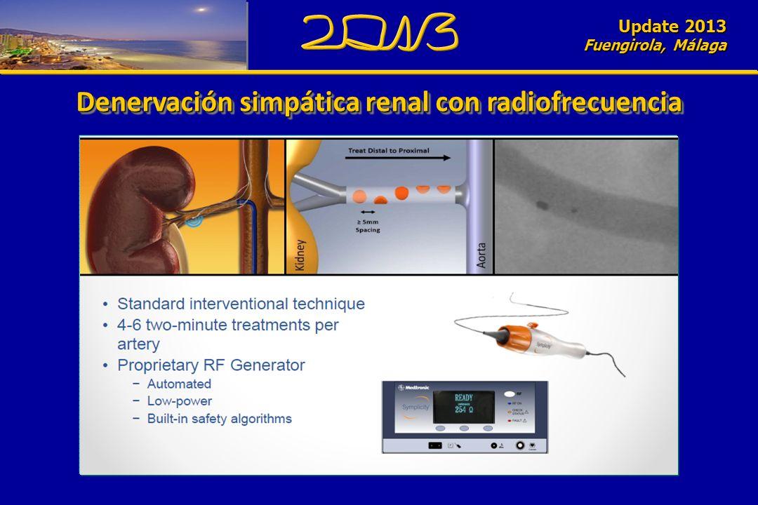 Update 2010 Fuengirola, Málaga Denervación simpática renal con radiofrecuencia Update 2013 Fuengirola, Málaga