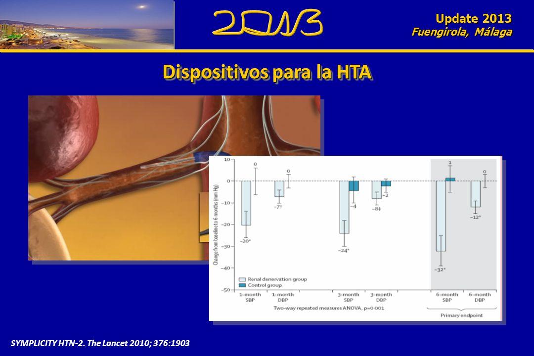Update 2010 Fuengirola, Málaga Dispositivos para la HTA Update 2013 Fuengirola, Málaga SYMPLICITY HTN-2. The Lancet 2010; 376:1903