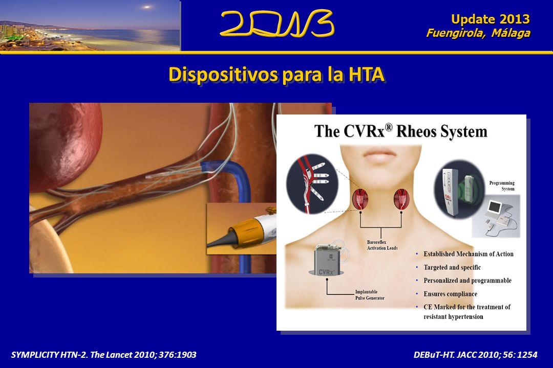 Update 2010 Fuengirola, Málaga SYMPLICITY HTN-2. The Lancet 2010; 376:1903DEBuT-HT. JACC 2010; 56: 1254 Dispositivos para la HTA Update 2013 Fuengirol