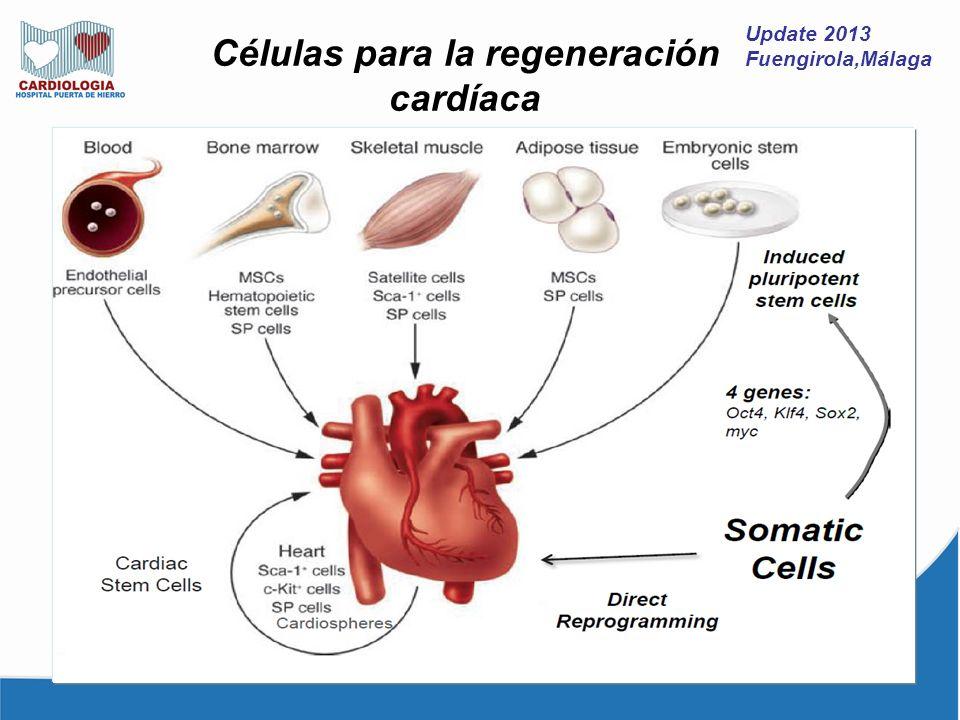 Update 2013 Fuengirola,Málaga En 3 lineas Metaanálisis de PCI vs tratamiento médico en angina estable Circ Cardiovasc Interv.