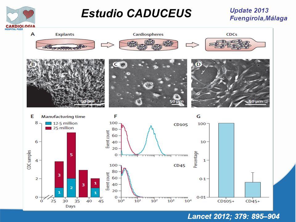 Update 2013 Fuengirola,Málaga Lancet 2012; 379: 895–904 Estudio CADUCEUS Resultados Objetivo Primario SEGURIDAD IAM Revascularización 1 DAI profiláctico Dolor torácico Fibrilación auricular