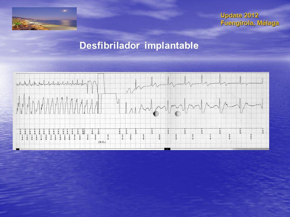 Desfibrilador implantable Update 2012 Fuengirola, Málaga