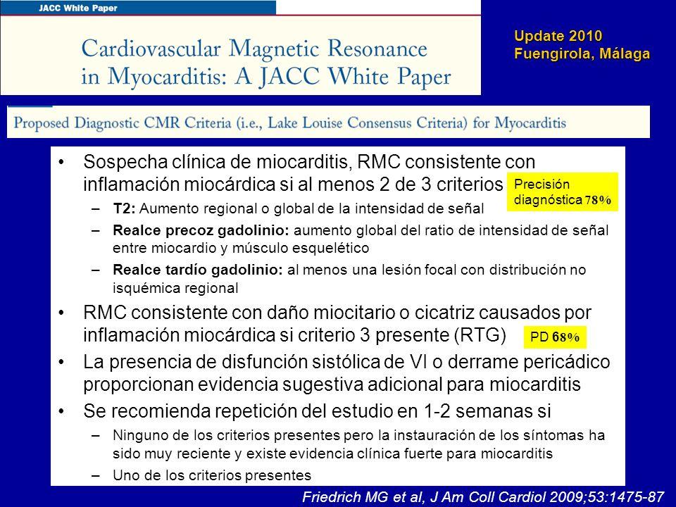 Update 2010 Fuengirola, Málaga Sospecha clínica de miocarditis, RMC consistente con inflamación miocárdica si al menos 2 de 3 criterios – –T2: Aumento
