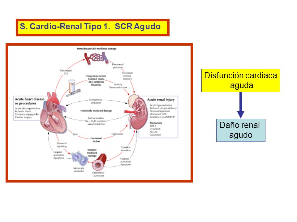 S. Cardio-Renal Tipo 1. SCR Agudo Disfunción cardiaca aguda Daño renal agudo