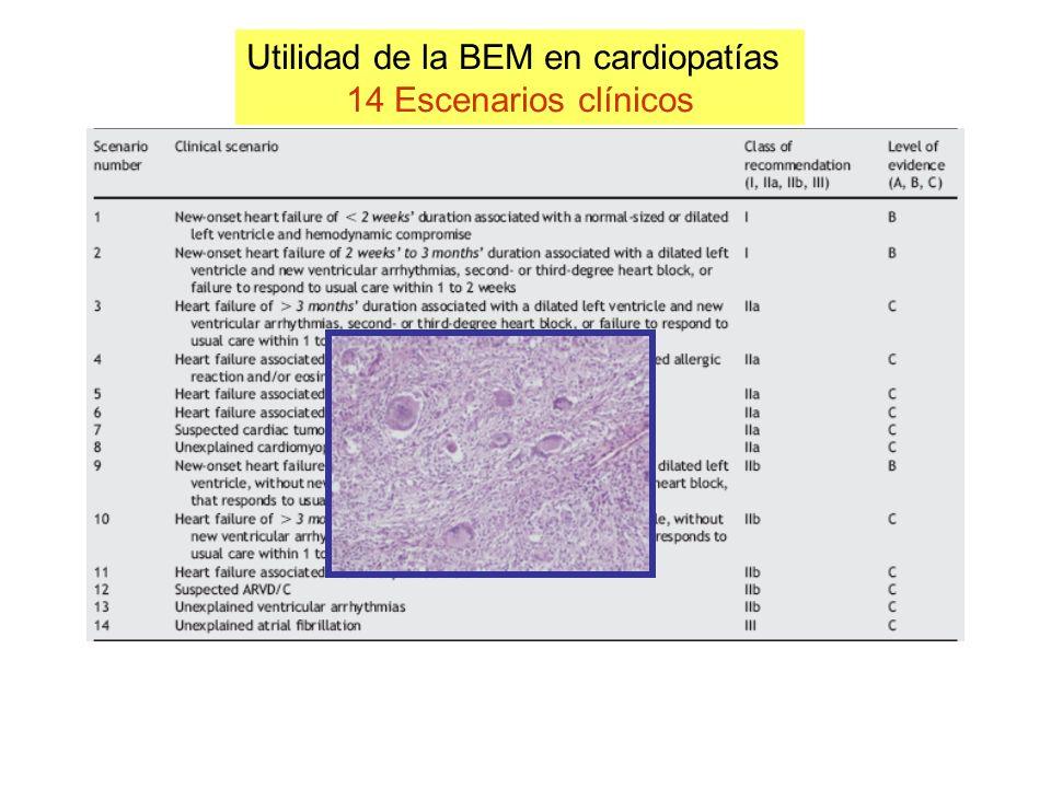 Utilidad de la BEM en cardiopatías 14 Escenarios clínicos