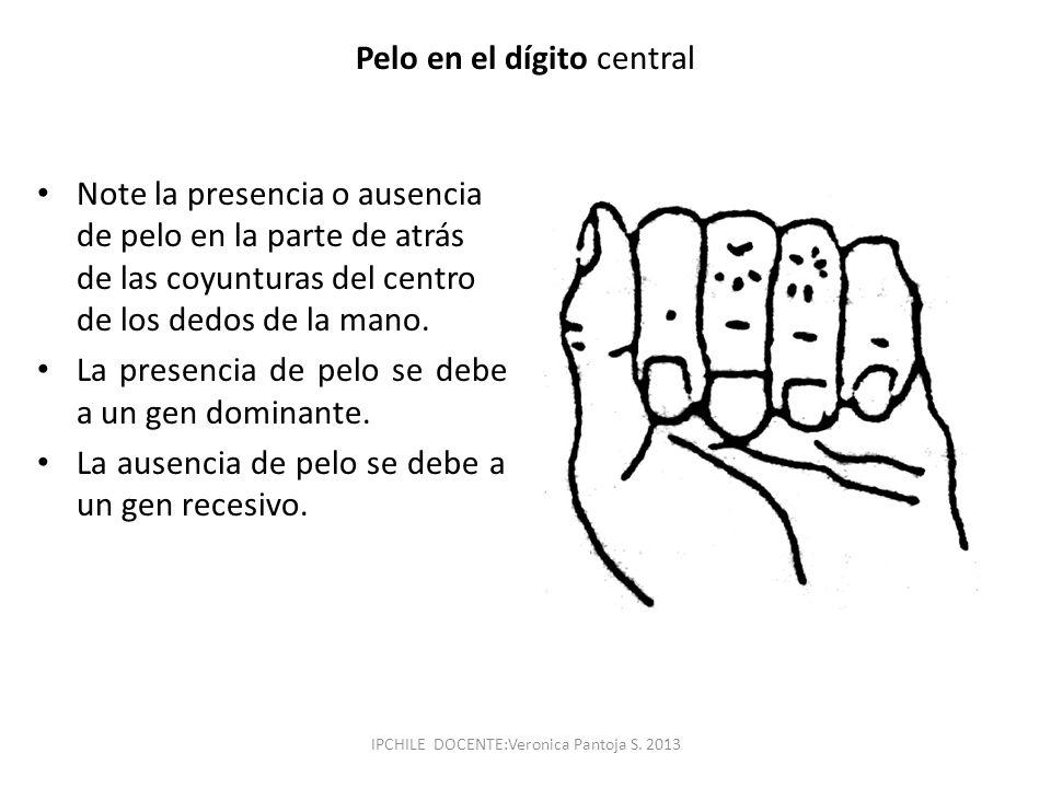 Pelo en el dígito central Note la presencia o ausencia de pelo en la parte de atrás de las coyunturas del centro de los dedos de la mano. La presencia