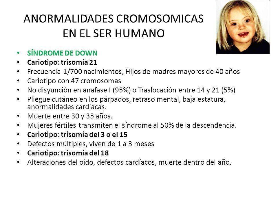 ANORMALIDADES CROMOSOMICAS EN EL SER HUMANO SÍNDROME DE DOWN SÍNDROME DE DOWN Cariotipo: trisomía 21 Frecuencia 1/700 nacimientos, Hijos de madres may
