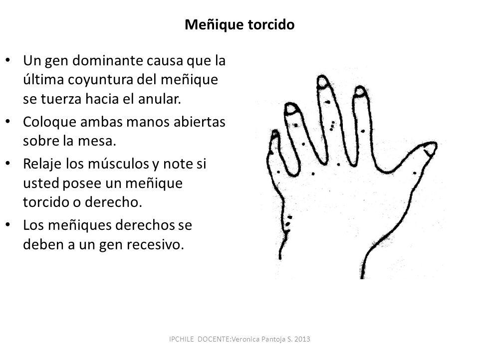 Meñique torcido Un gen dominante causa que la última coyuntura del meñique se tuerza hacia el anular. Coloque ambas manos abiertas sobre la mesa. Rela