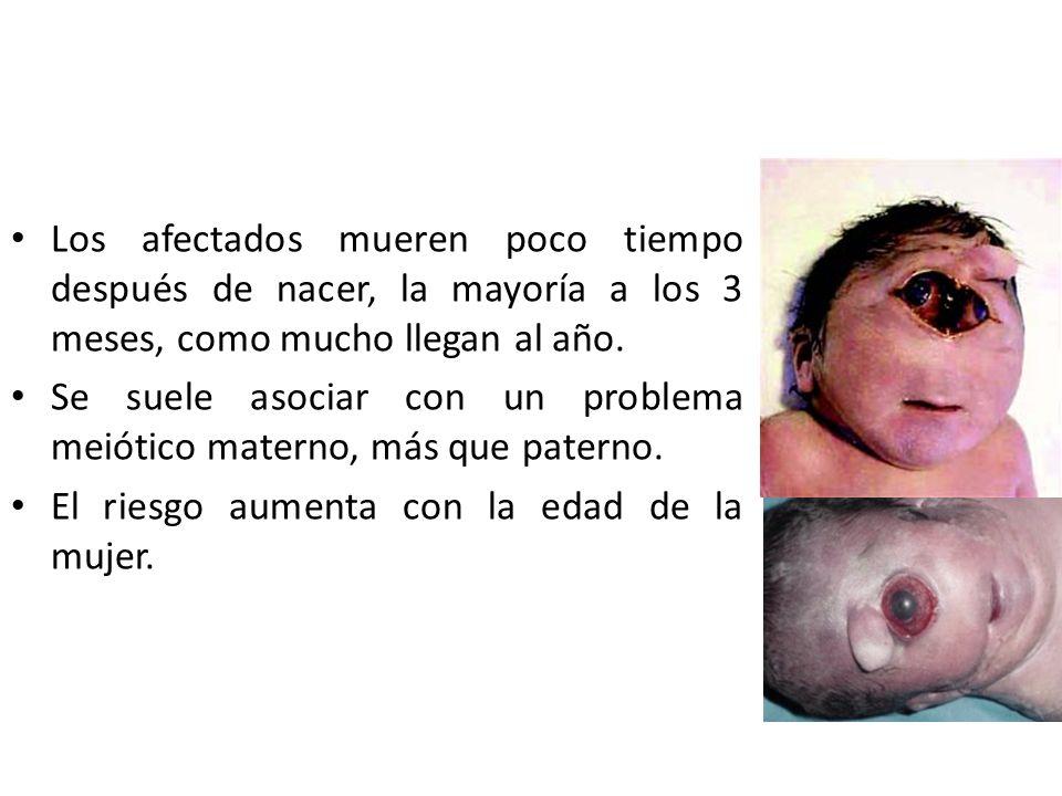 Los afectados mueren poco tiempo después de nacer, la mayoría a los 3 meses, como mucho llegan al año. Se suele asociar con un problema meiótico mater