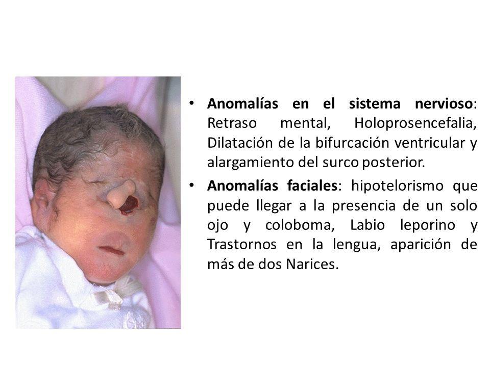 Anomalías en el sistema nervioso: Retraso mental, Holoprosencefalia, Dilatación de la bifurcación ventricular y alargamiento del surco posterior. Anom