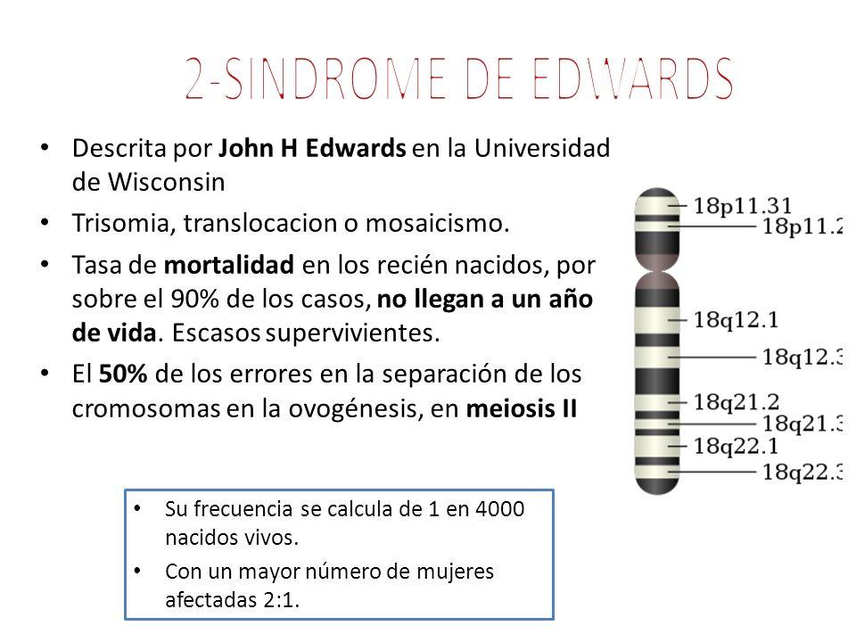 Descrita por John H Edwards en la Universidad de Wisconsin Trisomia, translocacion o mosaicismo. Tasa de mortalidad en los recién nacidos, por sobre e