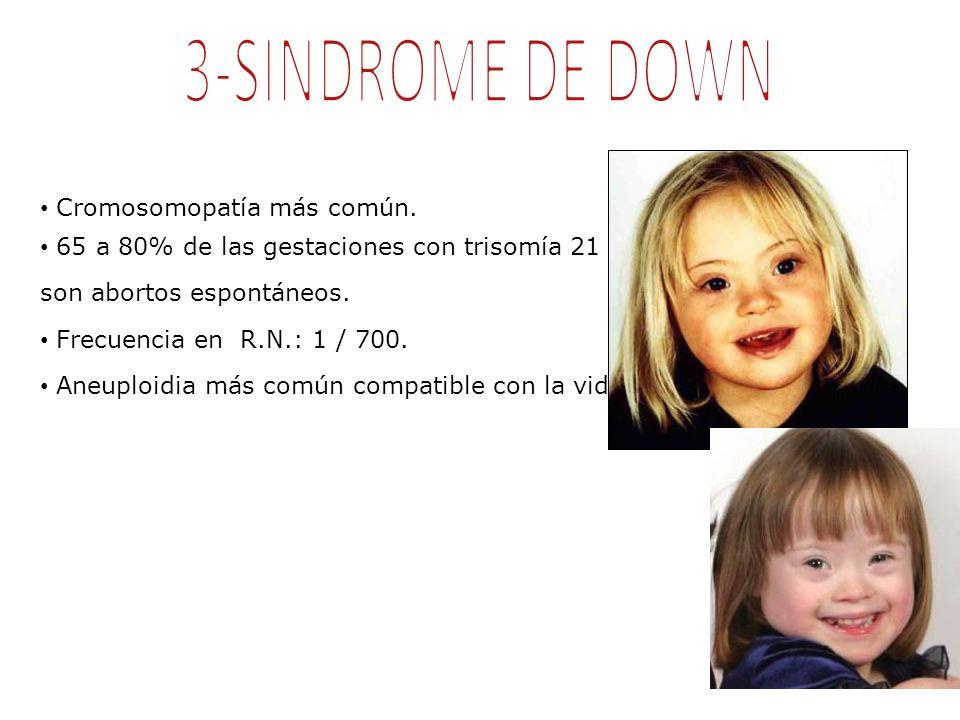 Cromosomopatía más común. 65 a 80% de las gestaciones con trisomía 21 son abortos espontáneos. Frecuencia en R.N.: 1 / 700. Aneuploidia más común comp