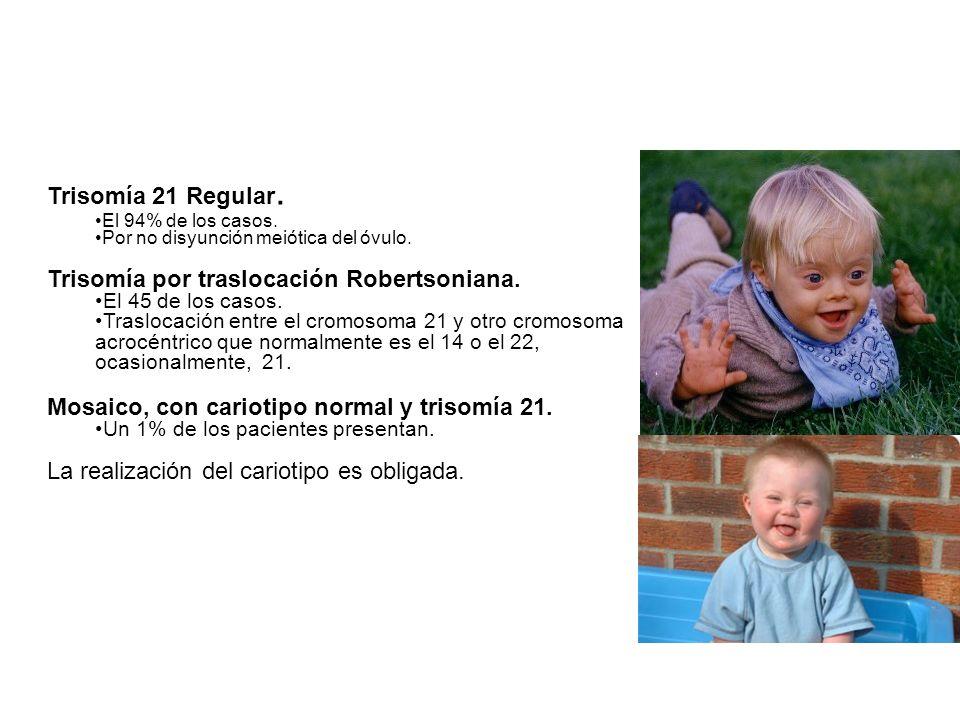 Trisomía 21 Regular. El 94% de los casos. Por no disyunción meiótica del óvulo. Trisomía por traslocación Robertsoniana. El 45 de los casos. Traslocac