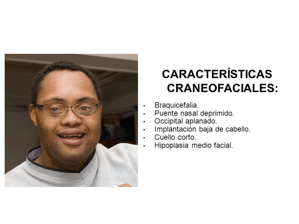 CARACTERÍSTICAS CRANEOFACIALES: Braquicefalia. Puente nasal deprimido. Occipital aplanado. Implantación baja de cabello. Cuello corto. Hipoplasia medi