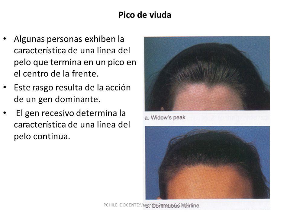 Pico de viuda Algunas personas exhiben la característica de una línea del pelo que termina en un pico en el centro de la frente. Este rasgo resulta de