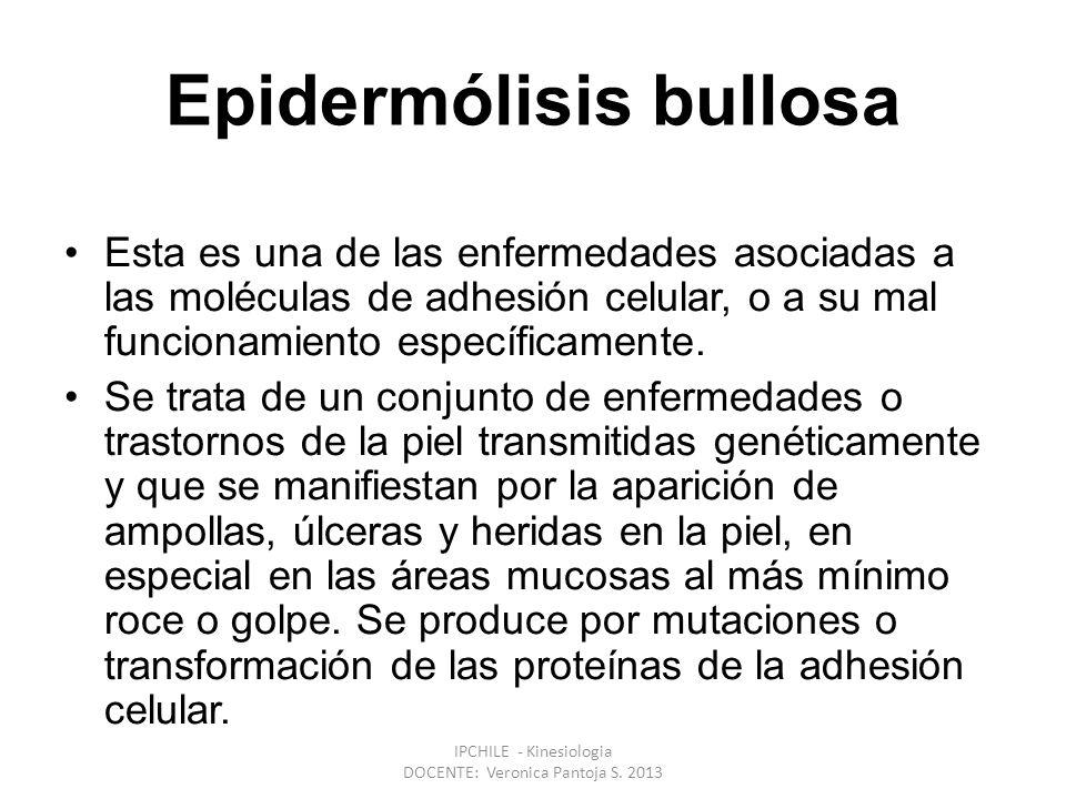 Epidermólisis bullosa Esta es una de las enfermedades asociadas a las moléculas de adhesión celular, o a su mal funcionamiento específicamente.