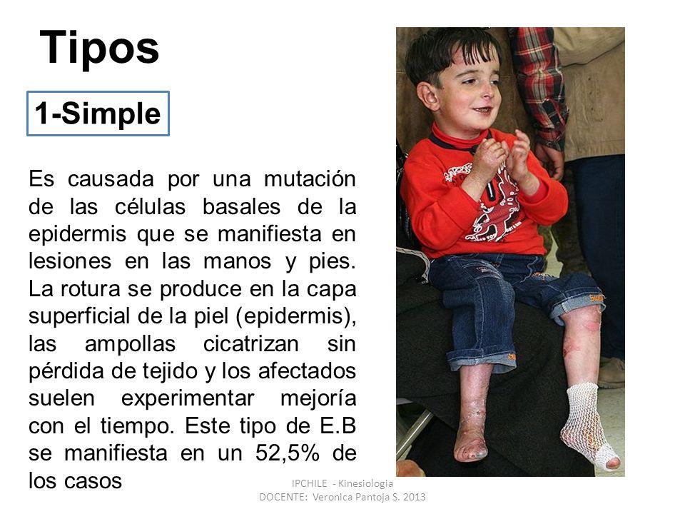 Tipos Es causada por una mutación de las células basales de la epidermis que se manifiesta en lesiones en las manos y pies.