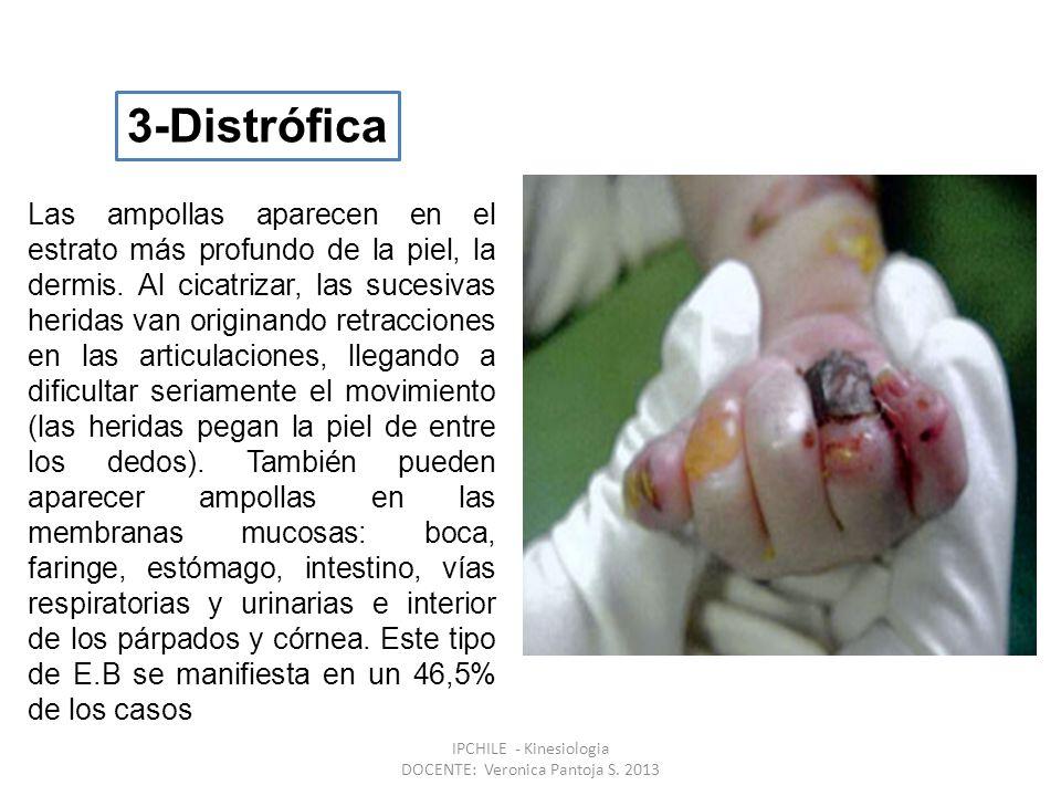 Las ampollas aparecen en el estrato más profundo de la piel, la dermis.
