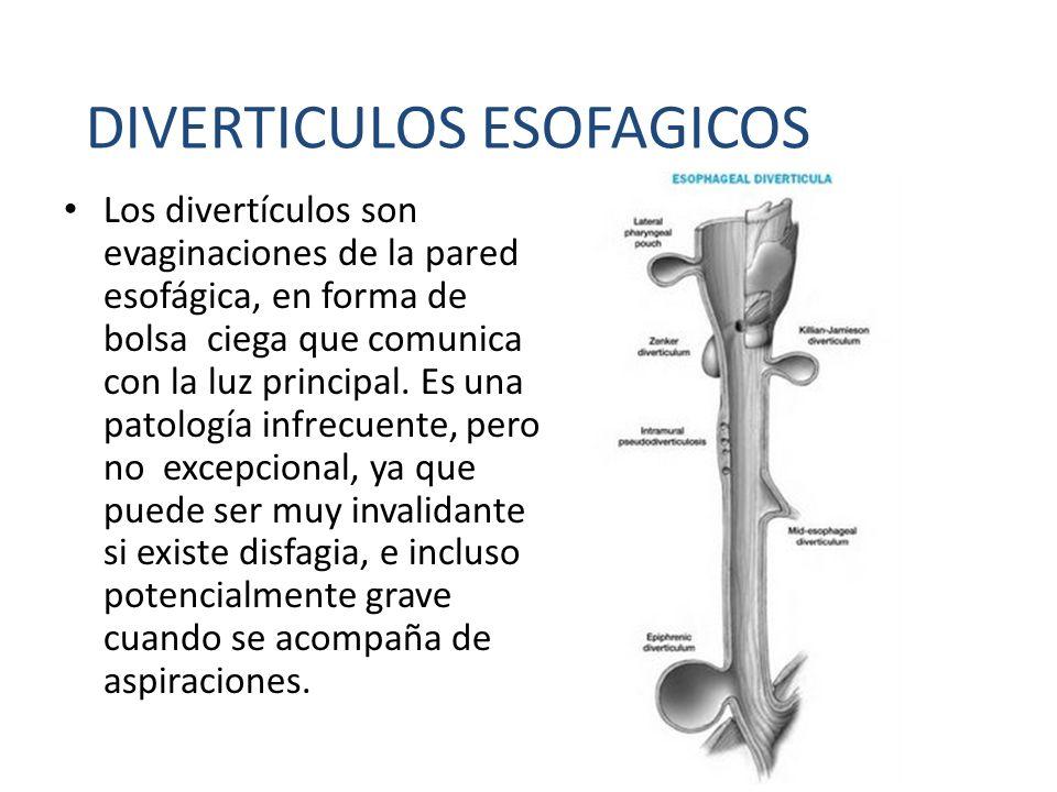 Los divertículos son evaginaciones de la pared esofágica, en forma de bolsa ciega que comunica con la luz principal. Es una patología infrecuente, per