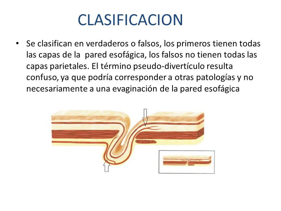 Se clasifican en verdaderos o falsos, los primeros tienen todas las capas de la pared esofágica, los falsos no tienen todas las capas parietales. El t